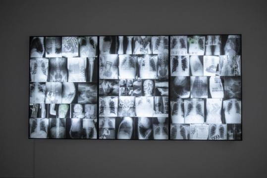 尚扬《95大风景-5》180×366cm 综合材料(医用X光片、木箱、聚脂板、荧光灯) 1996